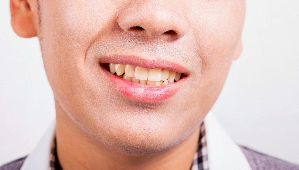 Man with yellowish teeth